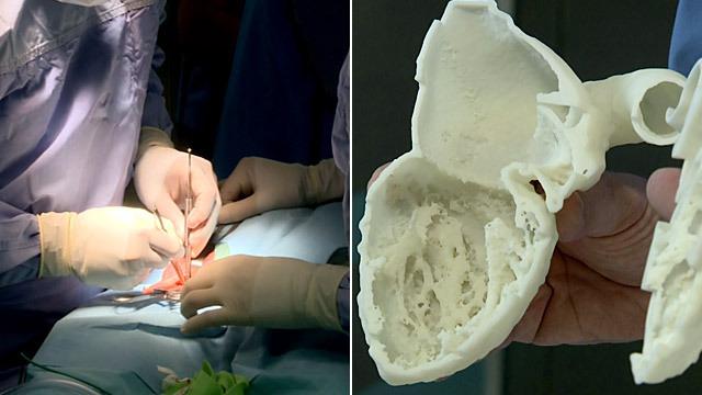 Pionierski zabieg serca, w którym pomoże model z drukarki 3D